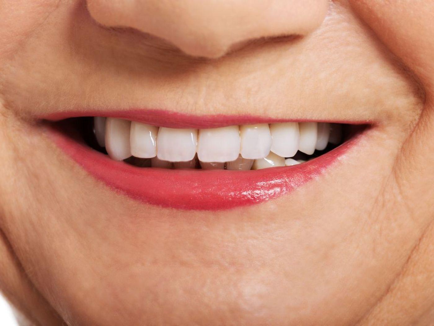 Quelques notions sur les mutuelles dentaires